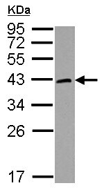 Western blot - Anti-HORMAD1 antibody (ab155176)
