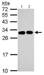 Western blot - Anti-SLC25A11 antibody (ab155196)