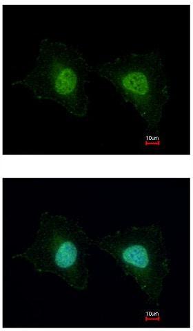 Immunocytochemistry/ Immunofluorescence - Anti-RING finger protein unkempt like antibody - N-terminal (ab155197)