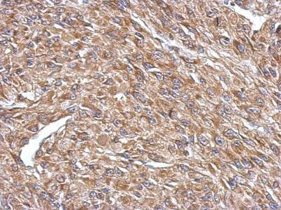 Immunohistochemistry (Formalin/PFA-fixed paraffin-embedded sections) - Anti-CPEB4 antibody - N-terminal (ab155204)