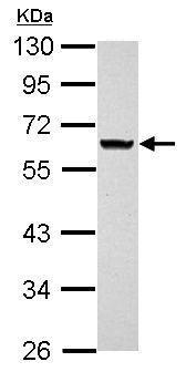 Western blot - Anti-ANKRD53 antibody (ab155211)