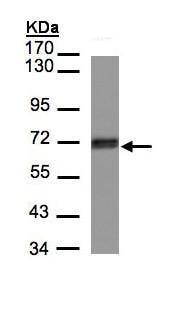 Western blot - Anti-CCDC6 antibody (ab155212)