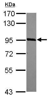 Western blot - Anti-PHF17 antibody - N-terminal (ab155215)