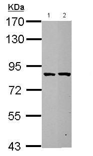 - Anti-ESRP2 antibody (ab155227)