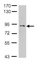 Western blot - Anti-GCS1 antibody (ab155231)
