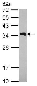 Western blot - Anti-SULT2A1 antibody (ab155239)