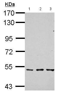 - Anti-TGF beta Receptor I antibody (ab155258)
