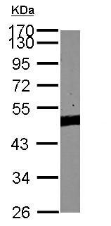 - Anti-Pygopus 2 antibody (ab155262)