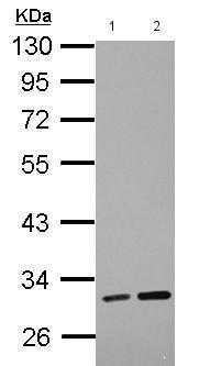 - Anti-LRRC19 antibody (ab155265)
