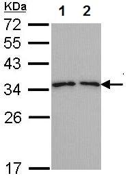 Western blot - Anti-Tropomyosin 3 antibody (ab155274)