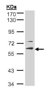 Western blot - Anti-STK33 antibody (ab155289)