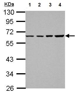 Western blot - Anti-TR2-11 antibody (ab155295)