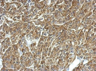 Immunohistochemistry (Formalin/PFA-fixed paraffin-embedded sections) - Anti-TPD52 antibody (ab155296)