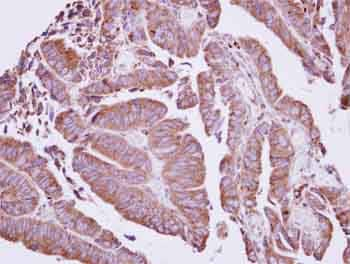 Immunohistochemistry (Formalin/PFA-fixed paraffin-embedded sections) - Anti-CORO2A antibody (ab155305)
