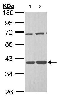 Western blot - Anti-TSTA3 antibody (ab155306)