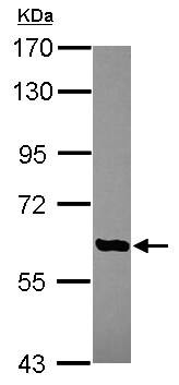 Western blot - Anti-AGBL4 antibody (ab155314)