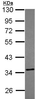 Western blot - Anti-TST antibody (ab155320)