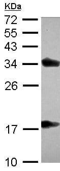 Western blot - Anti-TTPA antibody - C-terminal (ab155323)