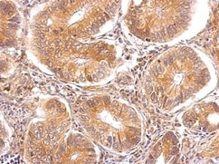 Immunohistochemistry (Formalin/PFA-fixed paraffin-embedded sections) - Anti-TTPA antibody - C-terminal (ab155323)