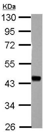 Western blot - Anti-HSFY1 antibody (ab155418)
