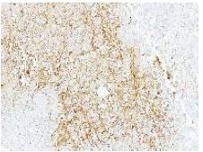 Immunohistochemistry (Formalin/PFA-fixed paraffin-embedded sections) - Anti-ABCB11 antibody (ab155421)