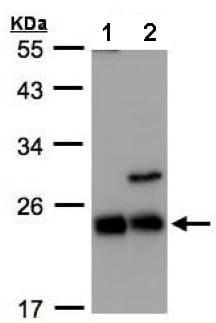 Western blot - Anti-CBFb antibody (ab155424)