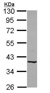 Western blot - Anti-B4GALT4 antibody (ab155476)