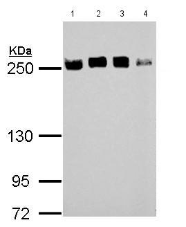 Western blot - Anti-eIF4GII antibody - N-terminal (ab155482)