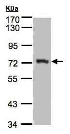 Western blot - Anti-Alkyl-DHAP synthase antibody (ab155492)