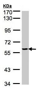 Western blot - Anti-Tyrosyl tRNA synthetase antibody (ab155504)
