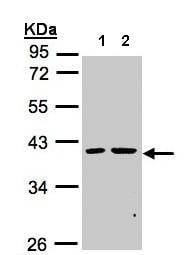 Western blot - Anti-PSKH2 antibody (ab155515)