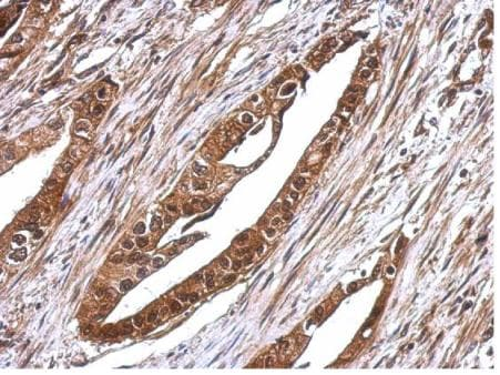 Immunohistochemistry (Formalin/PFA-fixed paraffin-embedded sections) - Anti-TIP49A antibody (ab155517)