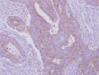 Immunohistochemistry (Formalin/PFA-fixed paraffin-embedded sections) - Anti-HGS antibody - C-terminal (ab155539)