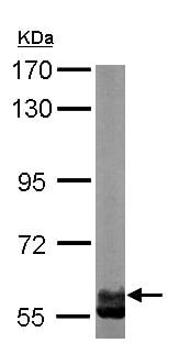 Western blot - Anti-CCT6A antibody (ab155541)