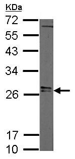 Western blot - Anti-Lin28A antibody (ab155542)