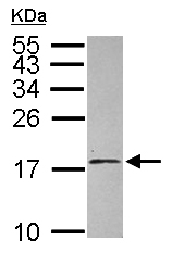 Western blot - Anti-EIF1AY antibody (ab155546)