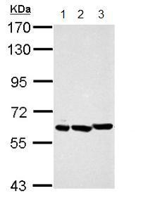 Western blot - Anti-PIAS2 antibody (ab155556)