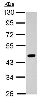 Western blot - Anti-Pygopus 2 antibody (ab155559)