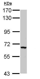 Western blot - Anti-ZNF34 antibody (ab155562)