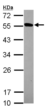Western blot - Anti-Protein kinase-like protein SgK493 antibody (ab155591)