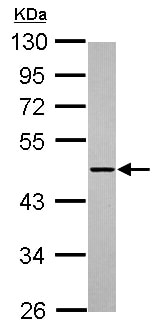 Western blot - Anti-ADAMTSL1 antibody - N-terminal (ab155597)