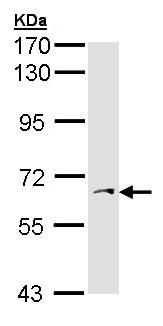 Western blot - Anti-PAPSS1 antibody (ab155600)
