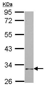Western blot - Anti-NCR1 antibody (ab155602)