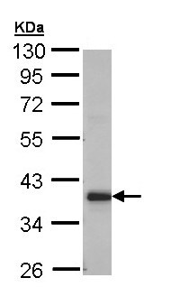 Western blot - Anti-GRHPR antibody (ab155604)