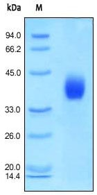 SDS-PAGE - DKK1 protein (Active) (ab155623)