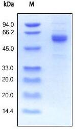 SDS-PAGE - Noggin protein (Active) (ab155634)