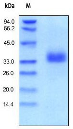 SDS-PAGE - EpCAM protein (Active) (ab155637)