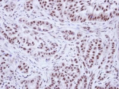 Immunohistochemistry (Formalin/PFA-fixed paraffin-embedded sections) - Anti-WTAP antibody (ab155655)