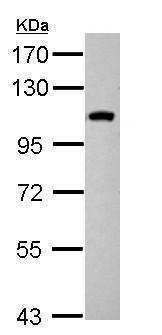 Western blot - Anti-NSP 5 alpha 3 alpha antibody (ab155658)