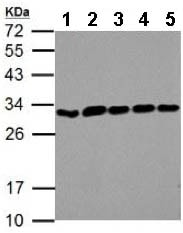 Western blot - Anti-ARD1A antibody (ab155687)
